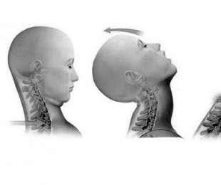 Ochrana krční páteře, žeber a dalších částí těla